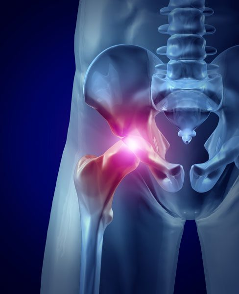 least expensive total hip replacement