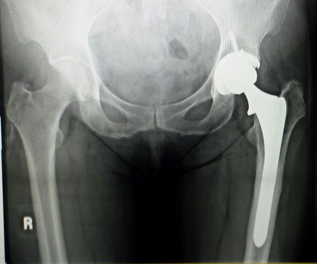 Outpatient Total Hip Replacement