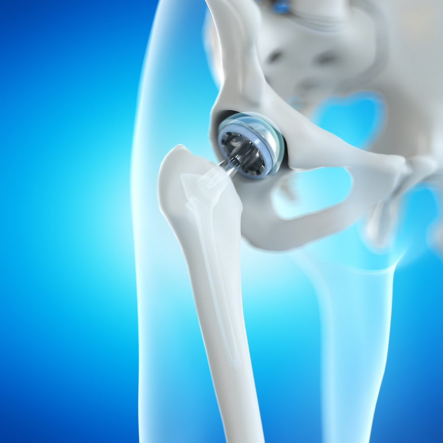 ANTERIOR VS. POSTERIOR HIP REPLACEMENT